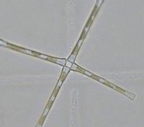 Asterieonella formosa